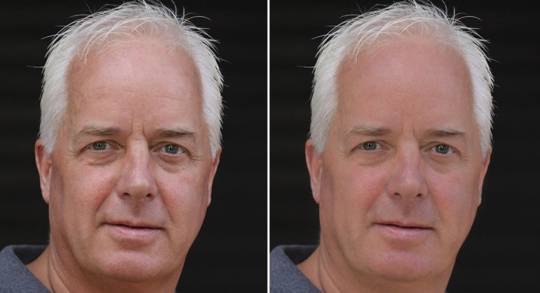How to Remove Reduce Skin Flaws Wrinkles Blemishes in Photoshop PSD Tutorial