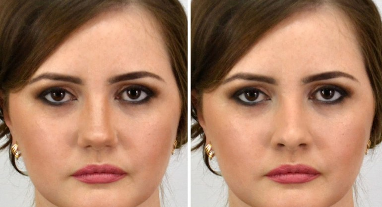 How to Replace Swap Change Nose Job in Photoshop Tutorial PSD