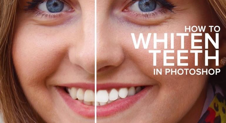 How to Easily Whiten & Brighten Teeth Retouching in Photoshop