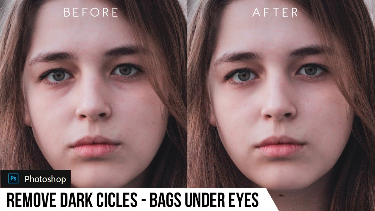 How to Remove Dark Circles and Bags Under Eyes in Photoshop