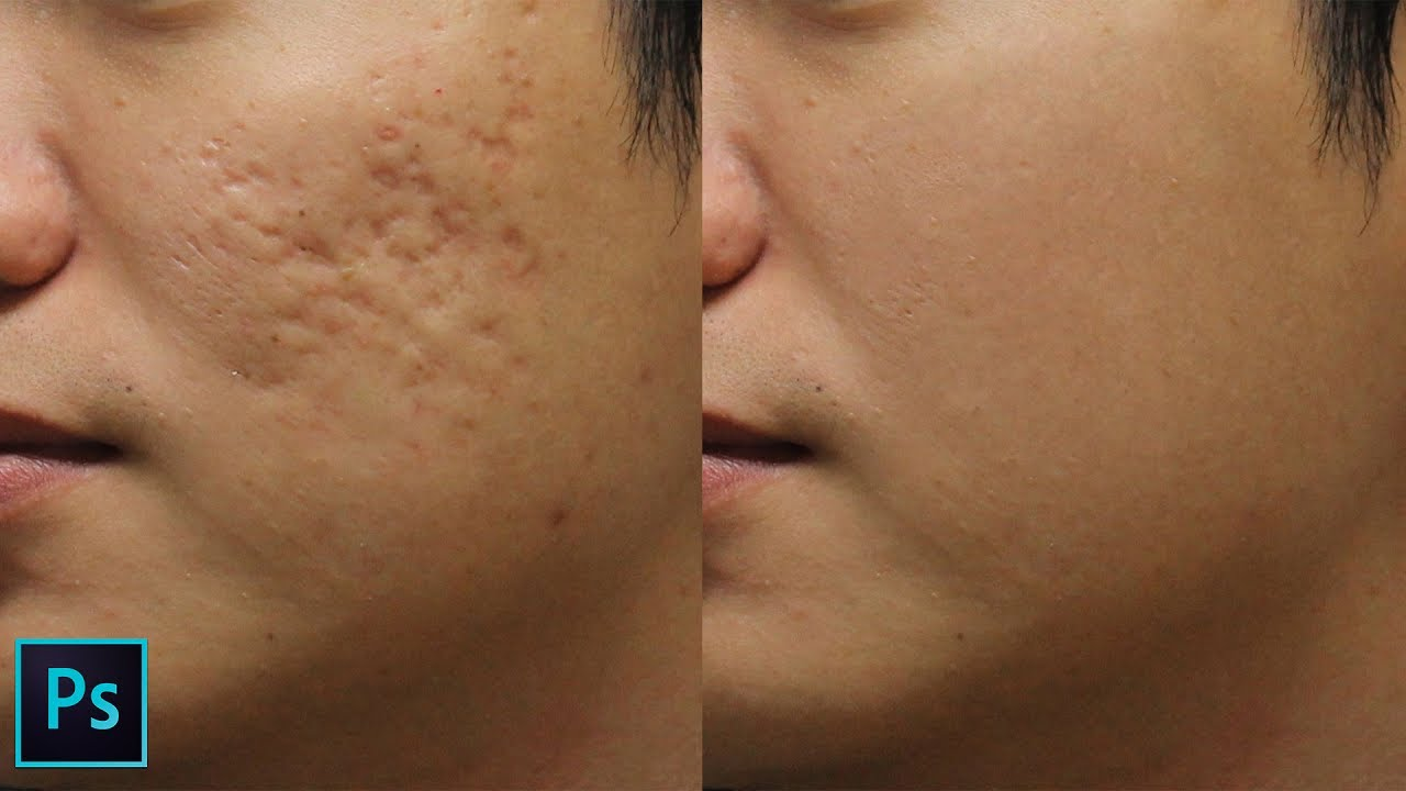 How to Remove Holes on Skin Caused by Acne Scars in Photoshop
