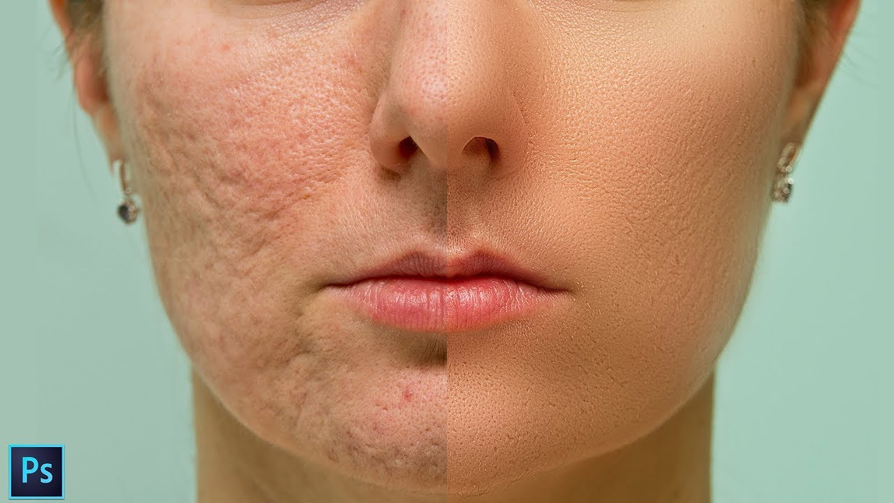 High-End Skin Softening Using Frequency Separation Technique in Photoshop